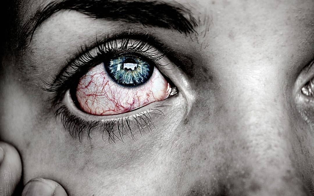 """What You Need to Know About """"Pink Eye"""""""