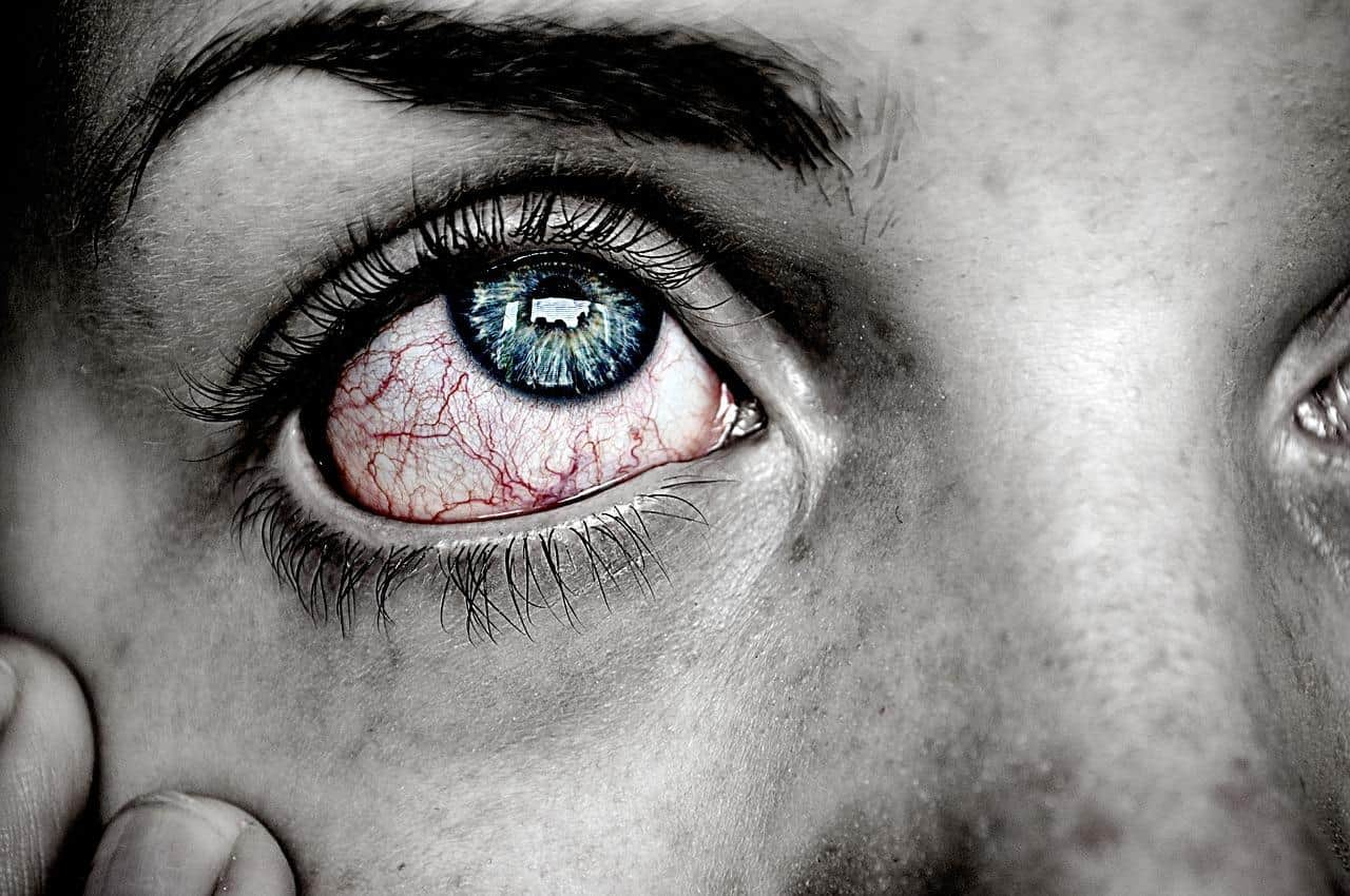 "What You Need to Know About ""Pink Eye"""