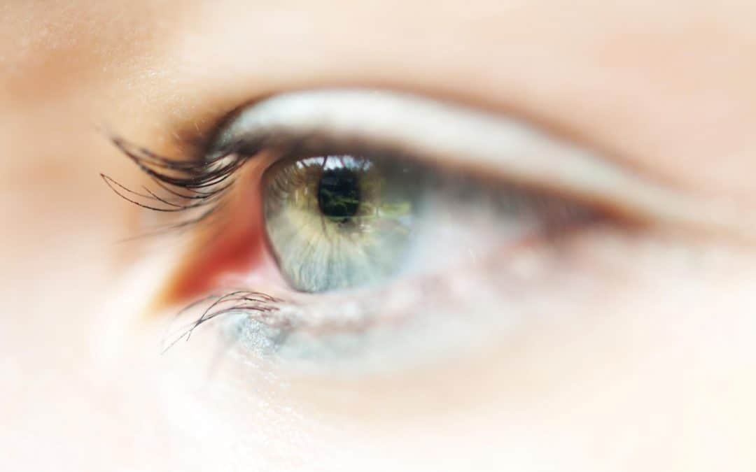 What Problems Can Contact Lenses Cause?