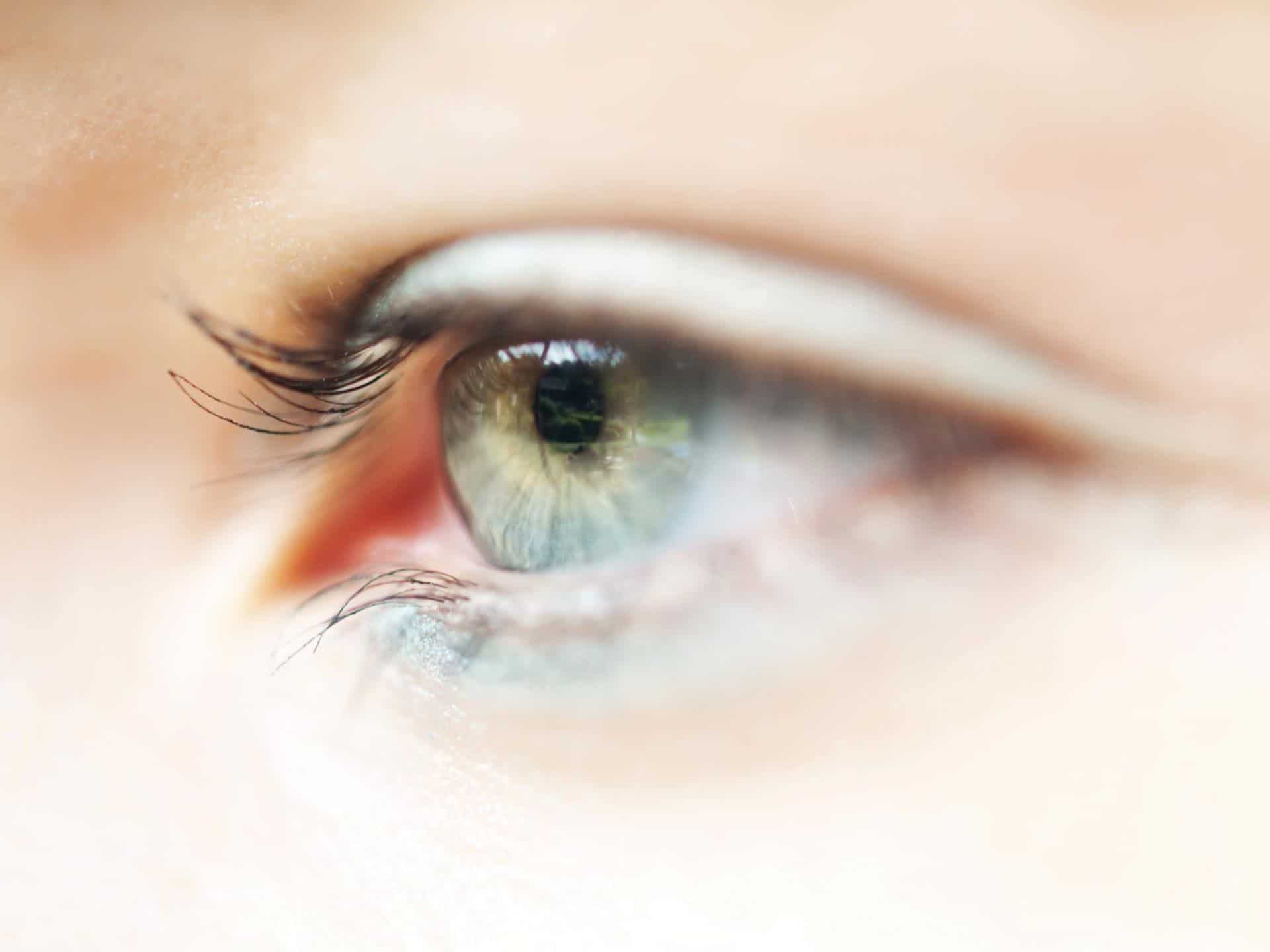 How is Glaucoma Treated?