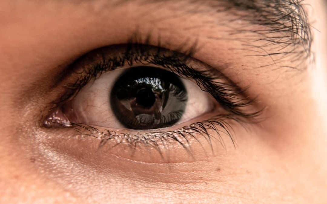 Can You Get a Skin Tag on Your Eyelid?